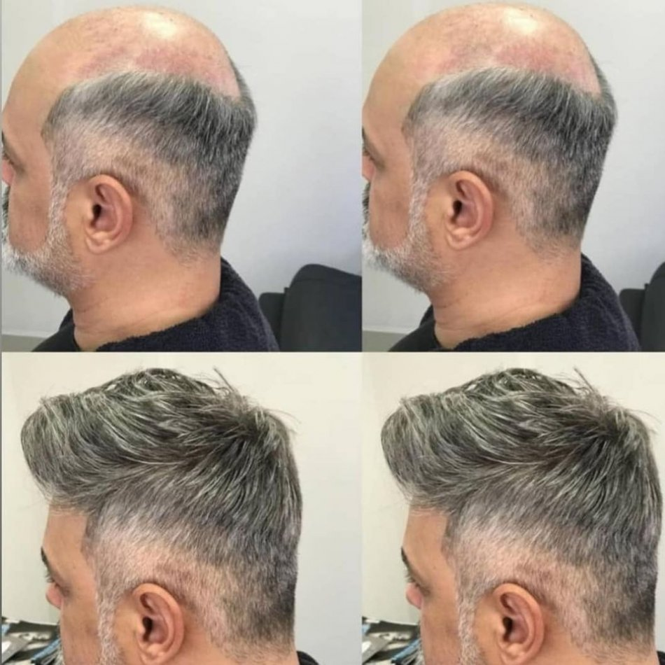 Higher-quality Hair Pieces for Men Makes 10 Years Youthful!