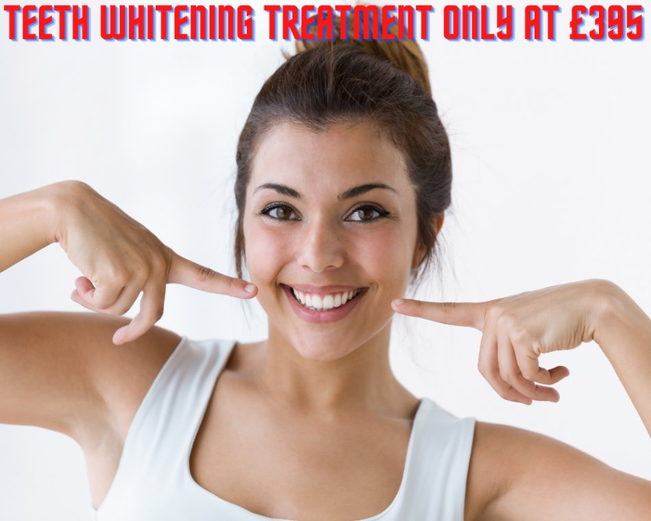 Get Professional Teeth Whitening Treatment at Just £395 at London Teeth Whitening